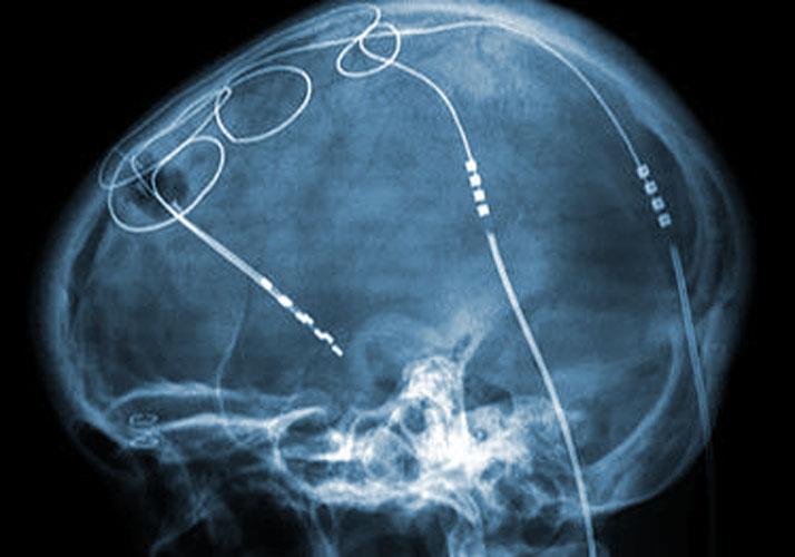Röntgenaufnahme eines Schädels mit Sonden